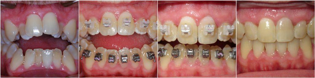 ba-teeth1
